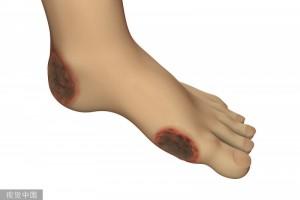 留心一下双脚呈现4个痕迹警觉糖尿病足找上门