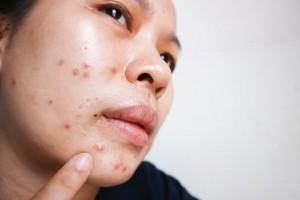 好消息不必吃药光子嫩肤也能治痘痘痘印痘坑快看皮肤科专家怎么说