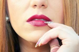 唇癌的特征唇癌的治疗措施