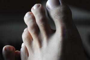 有水泡不痒是脚气吗脚气的预防措施是什么